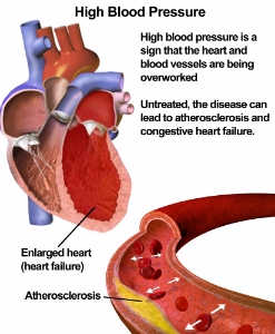 highblood pressure