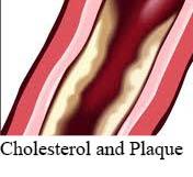 niacin and plaque cholesterol