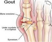 treatment for gout forum treating high uric acid how do i reduce uric acid in my blood
